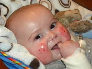La historia del bebé que no se podía tocar (Fotos)