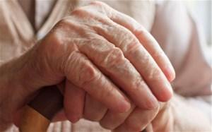 Describen la historia natural del Alzheimer en personas con síndrome de Down