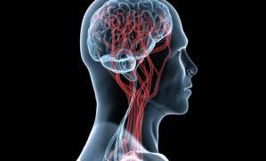 ¡Entérate! Las señales de alerta de tu cuerpo ante un derrame cerebral