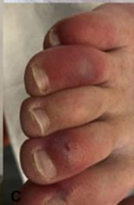 Dedos hinchados o morados, un nuevo síntoma del Covid-19 (FOTOS)
