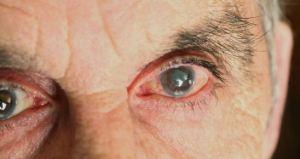 Los problemas de vista pueden aumentar el riesgo de demencia y el deterioro de la capacidad mental